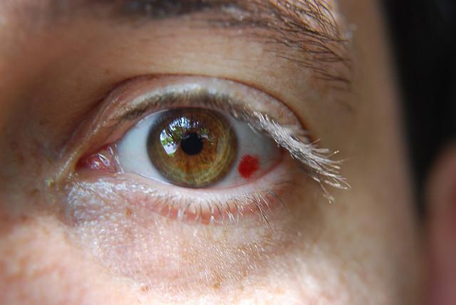 cum să pierzi sub grăsimea ochilor