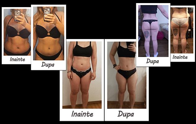 înainte și după pierderea în greutate bikini