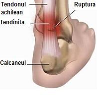 Pierde grăsime în jurul tendonului achilei