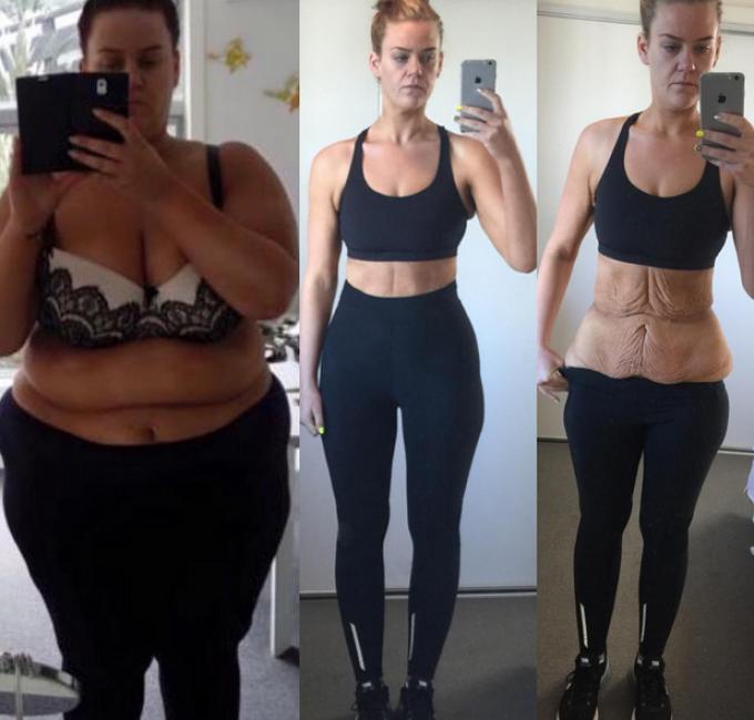Obezii de aproape de kilograme care au slabit enorm
