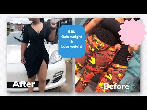 cum să pierdeți în greutate după un bbl)