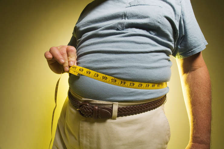 trebuie să slăbească obez morbid pierde in greutate la 45 de ani