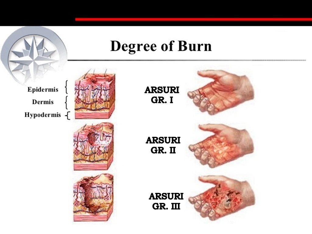 sesiune de arsură grasă