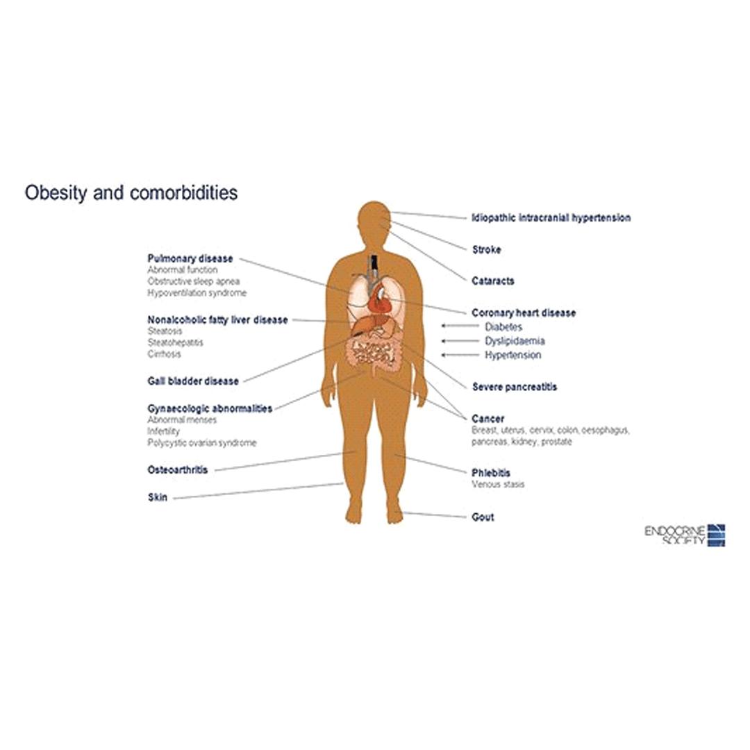resursele de pierdere în greutate obezitate din copilărie