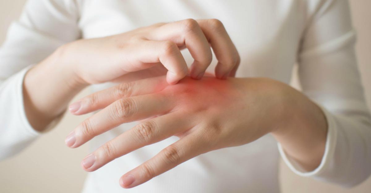 Alerta declanşată de medici dermatologi din Franţa: posibile noi simptome ale COVID-19