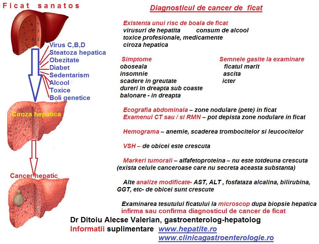 simptome de hepatită c scădere în greutate