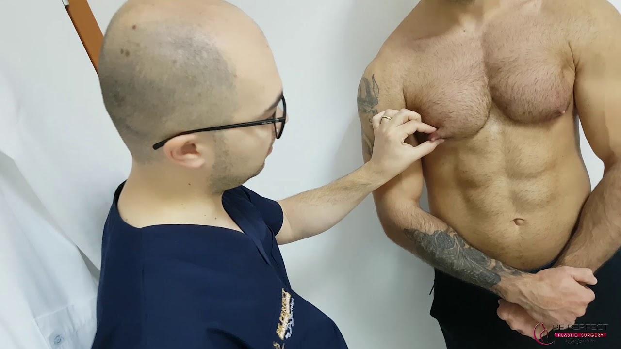Ce presupune operatia de micsorare a stomacului - beneficii, riscuri si recomandari