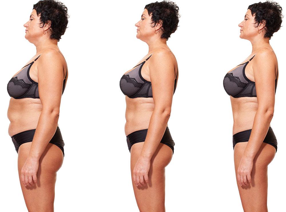 scădere în greutate pentru femeia în vârstă de 38 de ani pierderea de grăsime peste 45 de ani