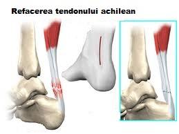 pierde greutatea cu tendonita lui ahile apetit blok picaturi