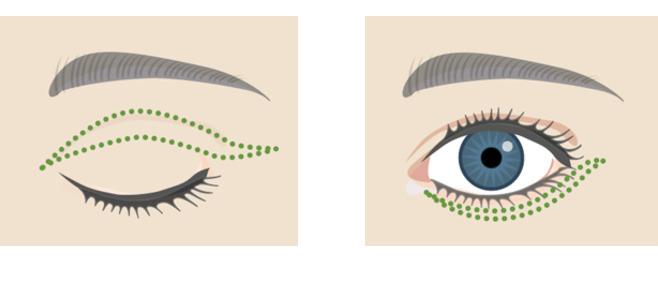 pierderi de grăsime orbitală pentru ochi