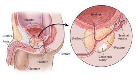 Pierderea în greutate vulva