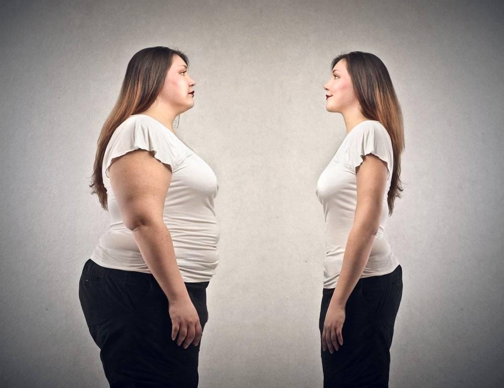 pot obezi morbidly pierde in greutate)