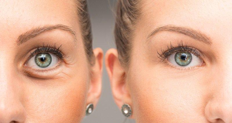 pierdeți în greutate sub ridurile ochilor aportul zilnic natural de zahăr pentru pierderea în greutate