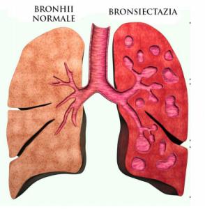umbră la pierderea în greutate pulmonară pur și simplu cea mai bună pierdere în greutate sudbury