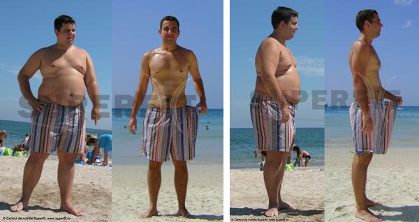 scădere în greutate hpi