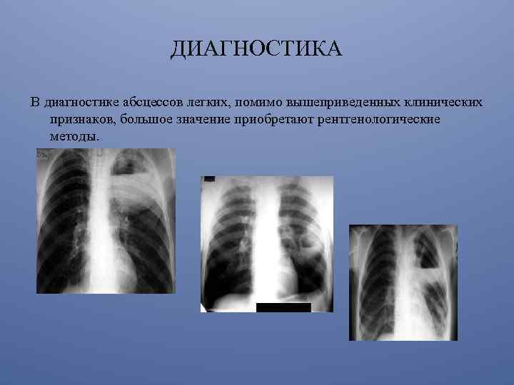 umbră la pierderea în greutate pulmonară
