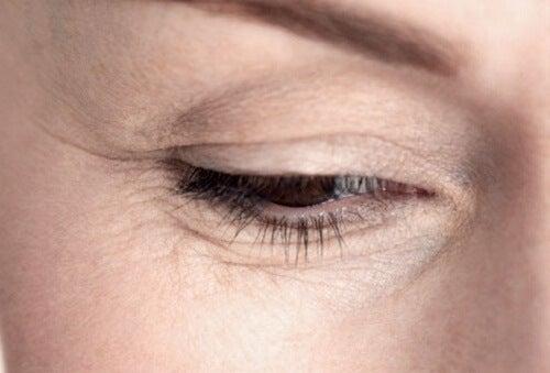 pierdeți în greutate sub ridurile ochilor 1 lună provocare de a pierde grăsimea din burtă